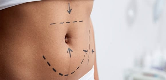 Suggestions for Tummy Tuck Surgery