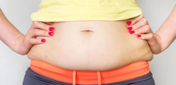 Recovery period for full Tummy Tuck
